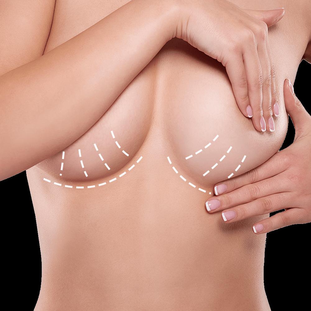 Mamoplastia de Aumento con Técnica de Cuña