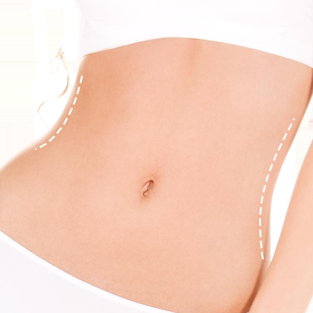 Abdominoplastia con Técnicas Corse 3D Siluet e Inside de Ombligo